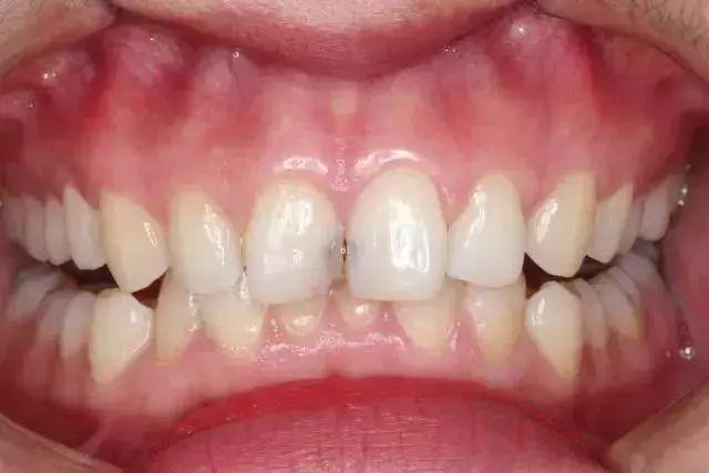 错买:水做的牙线,用过的人都说后悔……后悔买晚了!-BlueDotCC, 蓝点文化创意